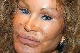 How did we get to this faux beauty addiction? (lets be honest many of the results of plastic surgery are not remotely beautiful…they are outright scary)
